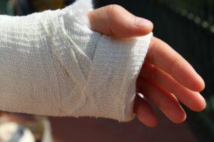 怪我している手